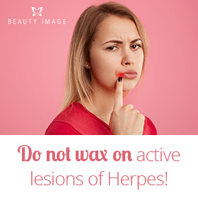 Contraindications of Waxing for Herpes